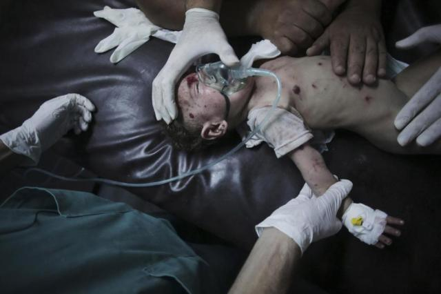 A wounded girl is treated in Gaza City following rocket fire. Source: Khalil Hamra/AP